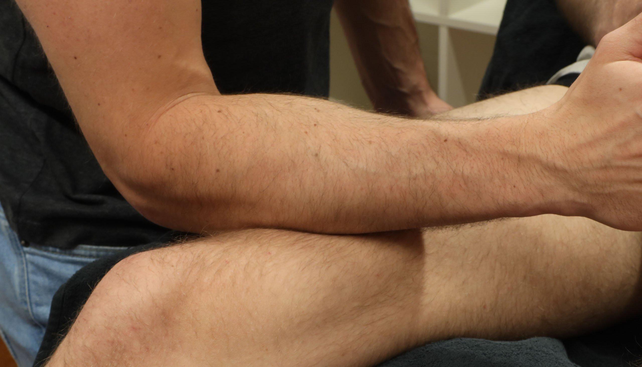 Hamstring blessures bij hardlopen
